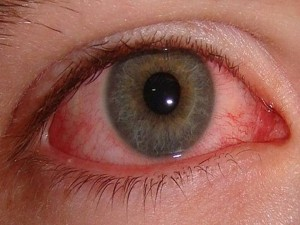 Mold on Eyes Pinnacle Property Inspections